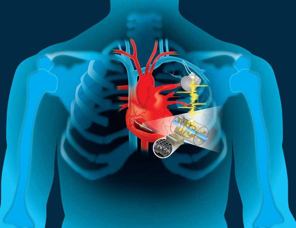 Global Implantable Medical Devices Market Size Worth US$ 148.8 Billion by 2024 | CAGR 7%