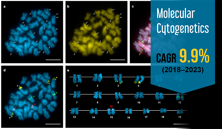 Advancements in Technology Augmenting Molecular Cytogenetics Market Growth