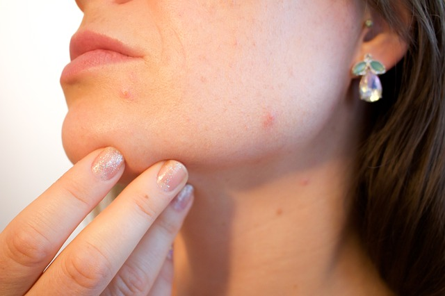 Acne Treatment Market Global Outlook 2019, Development Pipeline, Industry SWOT Analysis, Size, Share, Growth, Top Leaders, Regional Forecast to 2023