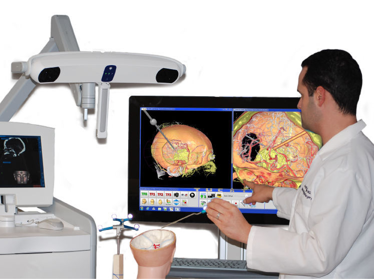 Surgical Navigation Systems Market 2019 Global Industry Analysis, Emerging Technology, Sales Revenue and Comprehensive Research Study Till 2023