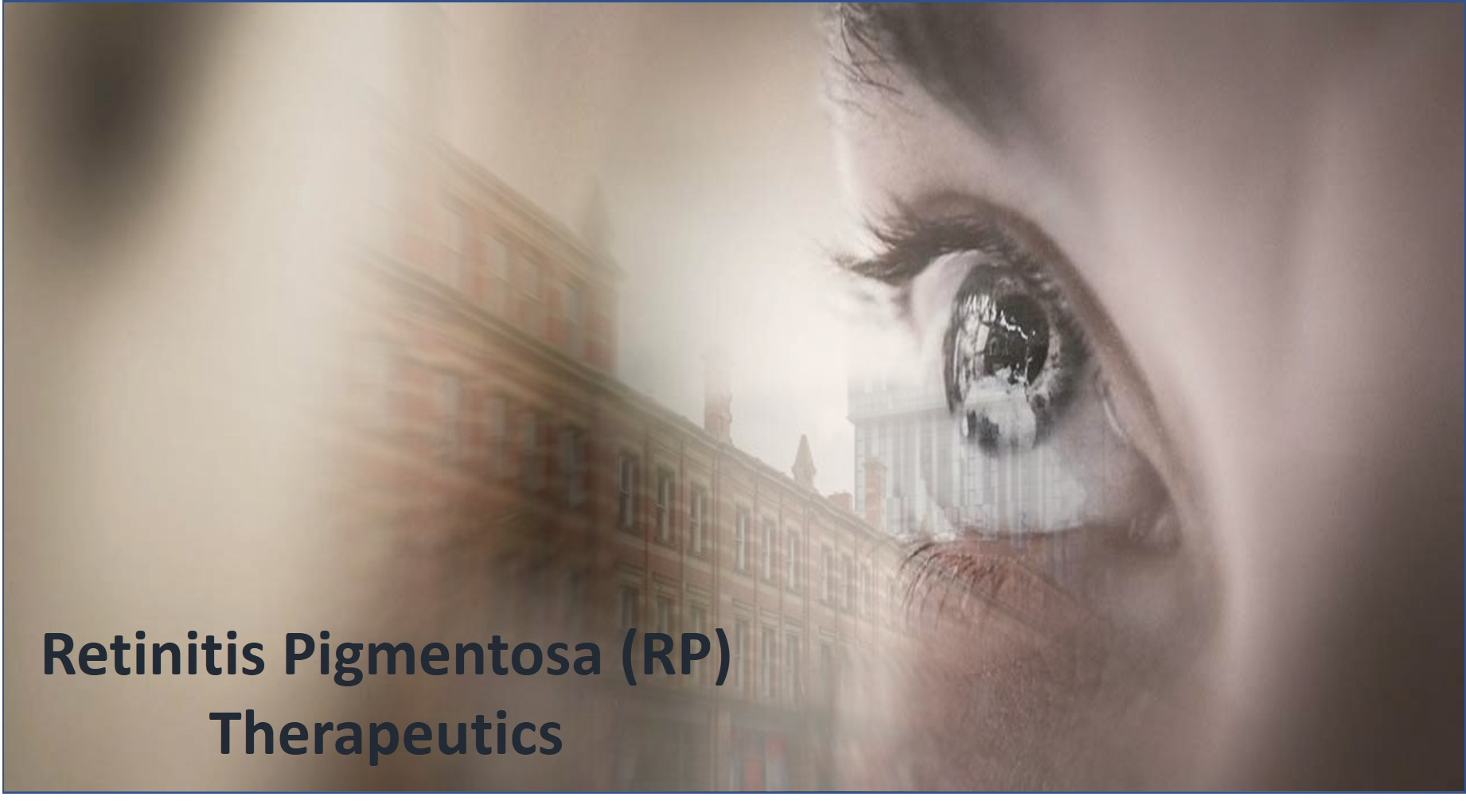 Retinitis Pigmentosa (RP) Therapeutics Pipeline to Witness Remarkable Growth due to Increased Number of Pipeline Candidates by Drug Developers