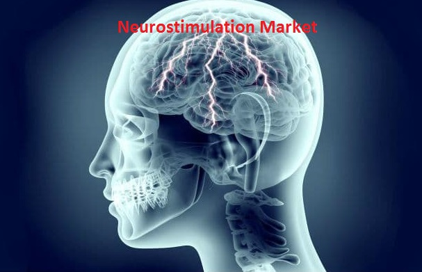 Global Neurostimulation Market Overview Analysis, Trends And Forecast to 2019-2024 Key Players Medtronic, Abbott, Boston Scientific Corporation, LivaNova PLC, Cochlear Ltd., MED-EL, Nevro Corp., Neuro