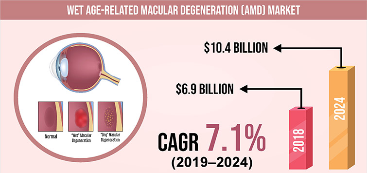 Surging Geriatric Population Driving the Wet Age-Related Macular Degeneration (AMD) Market Growth