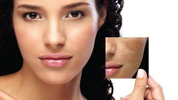 Hyperpigmentation Disorders Treatment Market Clinical Assessment Report 2019: Causes, Symptoms, Diagnosis, Drugs and Overall Business Outlook till 2023   Latest MRFR Brief