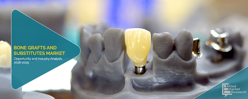 Bone Grafts and Substitutes Market is Striving in Worldwide with Top Key Players are Arthrex, Inc., Baxter International Inc., Integra LifeSciences Holdings Corporation, Johnson & Johnson, Medtronic P
