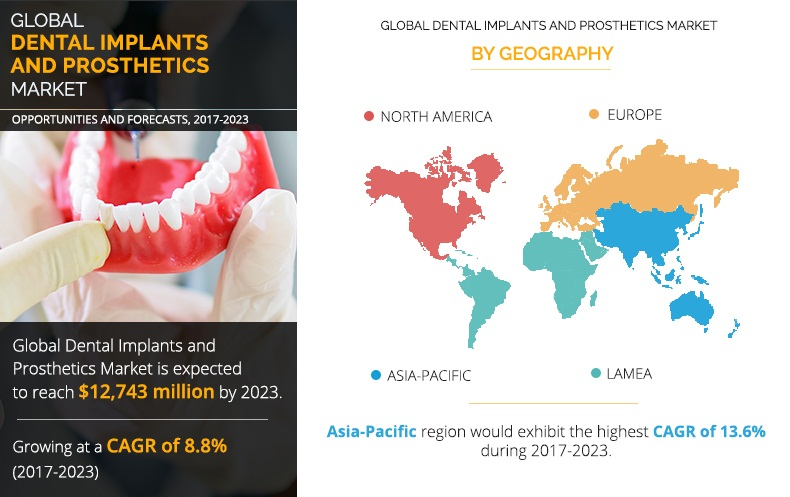 Dental Implants and Prosthetics Market Expected to Reach $12,743 Million, Globally, by 2023