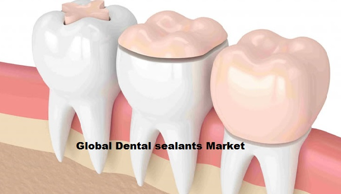 Global Dental Sealants Market 2019  Explore Future Growth 2018-2026 by Global Top Players Tricol Biomedical, Johnson Services, Inc., Mitsui Chemicals, Inc., Sybron Dental Specialties, Smith & Nephew,