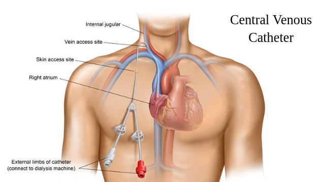 Central Venous Catheter Market to Surpass US$ 1.9 Billion by 2026 | Latest Trends and Industry Vision