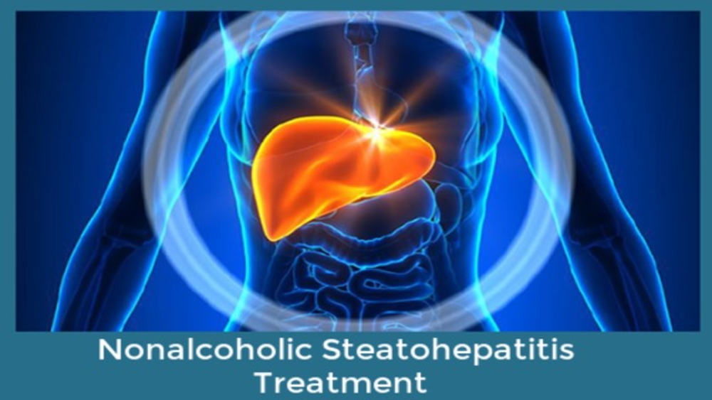Nonalcoholic Steatohepatitis Treatment Market is expected to Foresee Tremendous Growth by 2026 | Insights by Drug, Distribution and Regional Forecast 2026