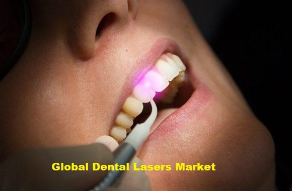 Dental Lasers Market  2019 Global Industry Major Key Players like THE YOSHIDA DENTAL MFG. CO.,LTD., Zolar Technology & Mfg Co. Inc., FONA Dental, s.r.o., Convergent Dental, GPT Dental, Inc., etc.