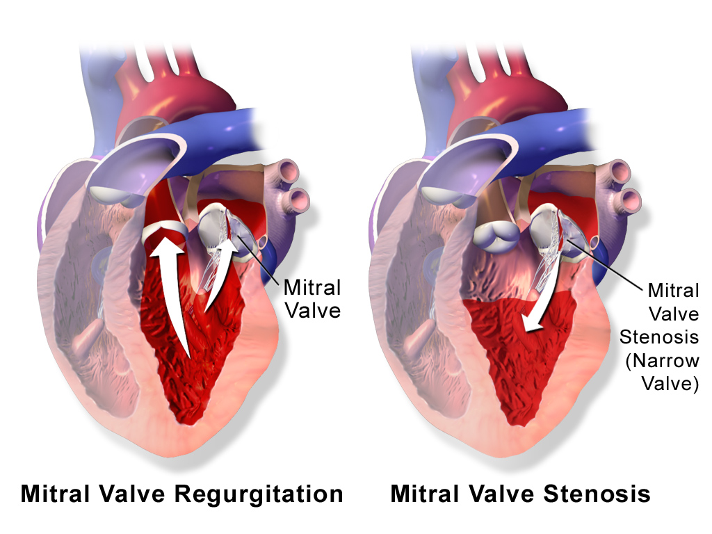 Mitral Valve Stenosis Market Global Outlook 2019, Industry Analysis by Diagnostic Test, Treatment, Market Growth, Size, Share, Trends, Top Companies, Regional Insight by 2023