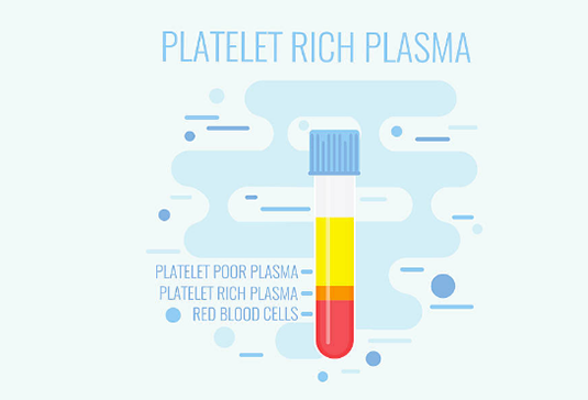 Platelet Rich Plasma Market Getting Larger With Great CAGR By 2026: Stryker, DePuy Synthes, T-Biotechnology, Arthrex, Terumo BCT, Arteriocyte Medical Systems, CellMedix, Zimmer Biomet