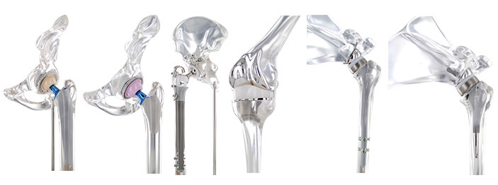 Orthopedic Implants Market Competitive Growth Overview with Impact of New Innovations By Current Trends, Size Estimation, Global Share and Developments, Global Foresight 2018 – 2023