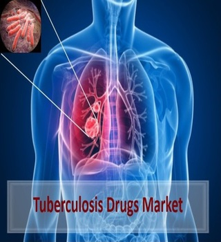 Tuberculosis Drugs Market Surges past US$ 2 Billion by 2024 | Coherent Market Insights