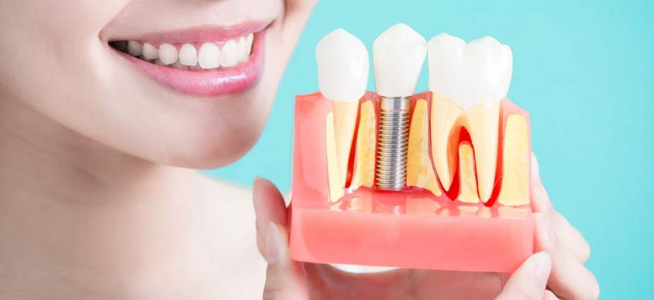Osseointegration Implants Market Valuation of USD 6.8 Billion By 2023 with Rising Technology, Industry Update, Future Trends and Regional key Player Analysis