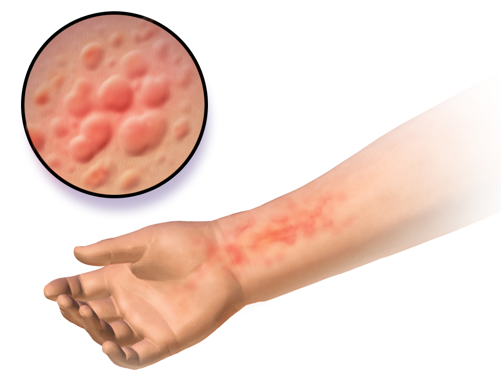 Global Soft Tissue Sarcoma Market to Exhibit 8.2% CAGR by 2023, Increase Prevalence Rate Fueling the Demand for Soft Tissue Sarcoma Treatment