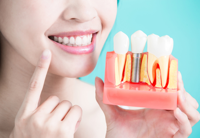 Dental Implants Market to surpass US$ 6269.8 Million by 2024 - Coherent Market Insights
