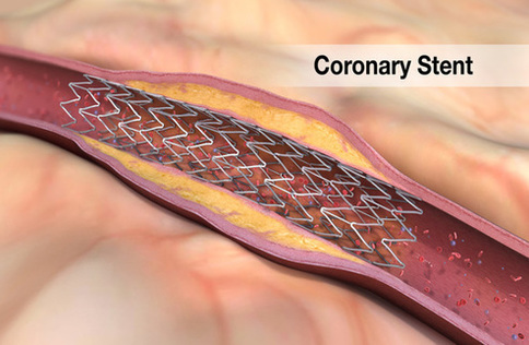 Coronary Stents Market to Surpass US$ 13.0 billion by 2026 | Set Phenomenal Growth