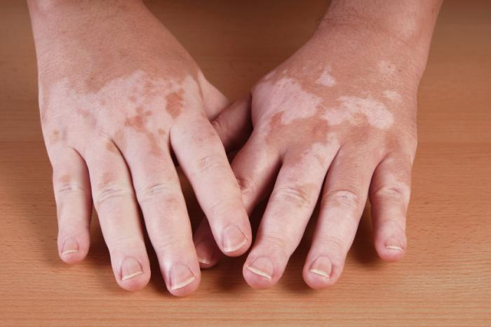 Vitiligo Drugs Market Analysis by Latest Trends, Growth in Manufacturing