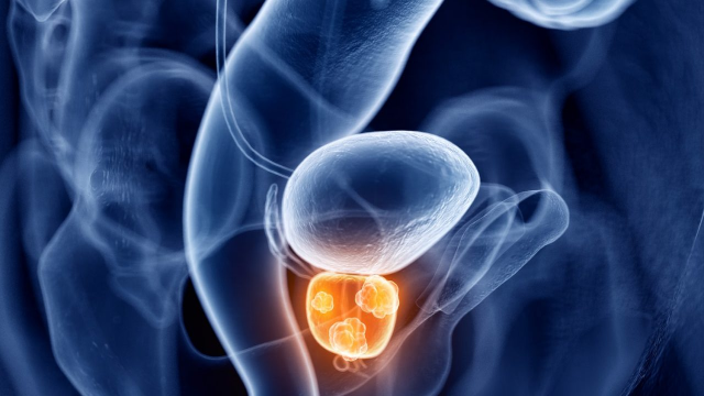 Prostate Cancer Therapeutics Market - A Well-Defined Technological Growth Map With An Impact-Analysis | Top Players Johnson & Johnson, Astella, Inc, Sanofi-Aventis, Bayer AG, AstraZeneca Plc, Pfizer, etc.