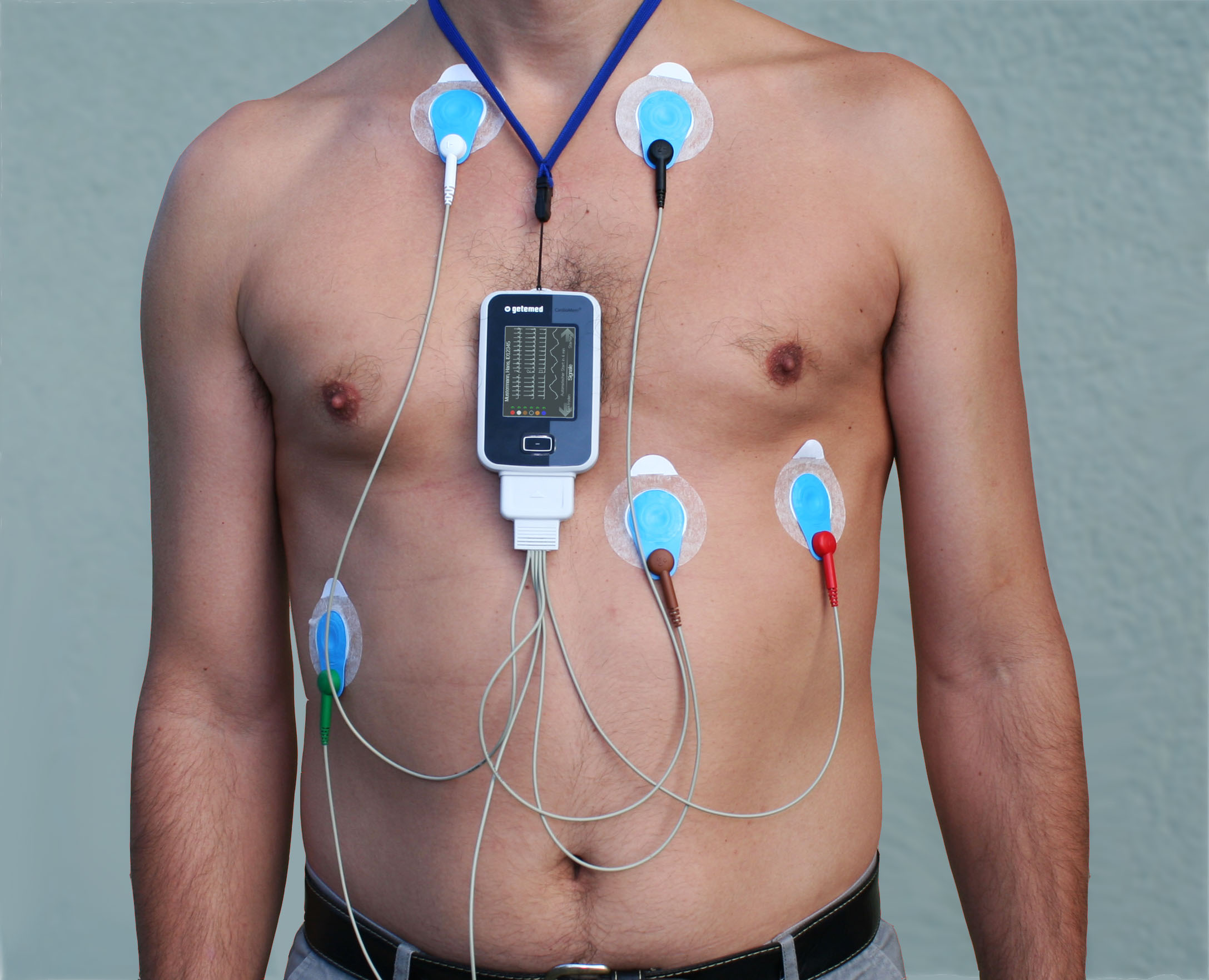 Cardiac Holter Monitor Market Report, Global Industry Overview, Growth and Forecast 2019-2024