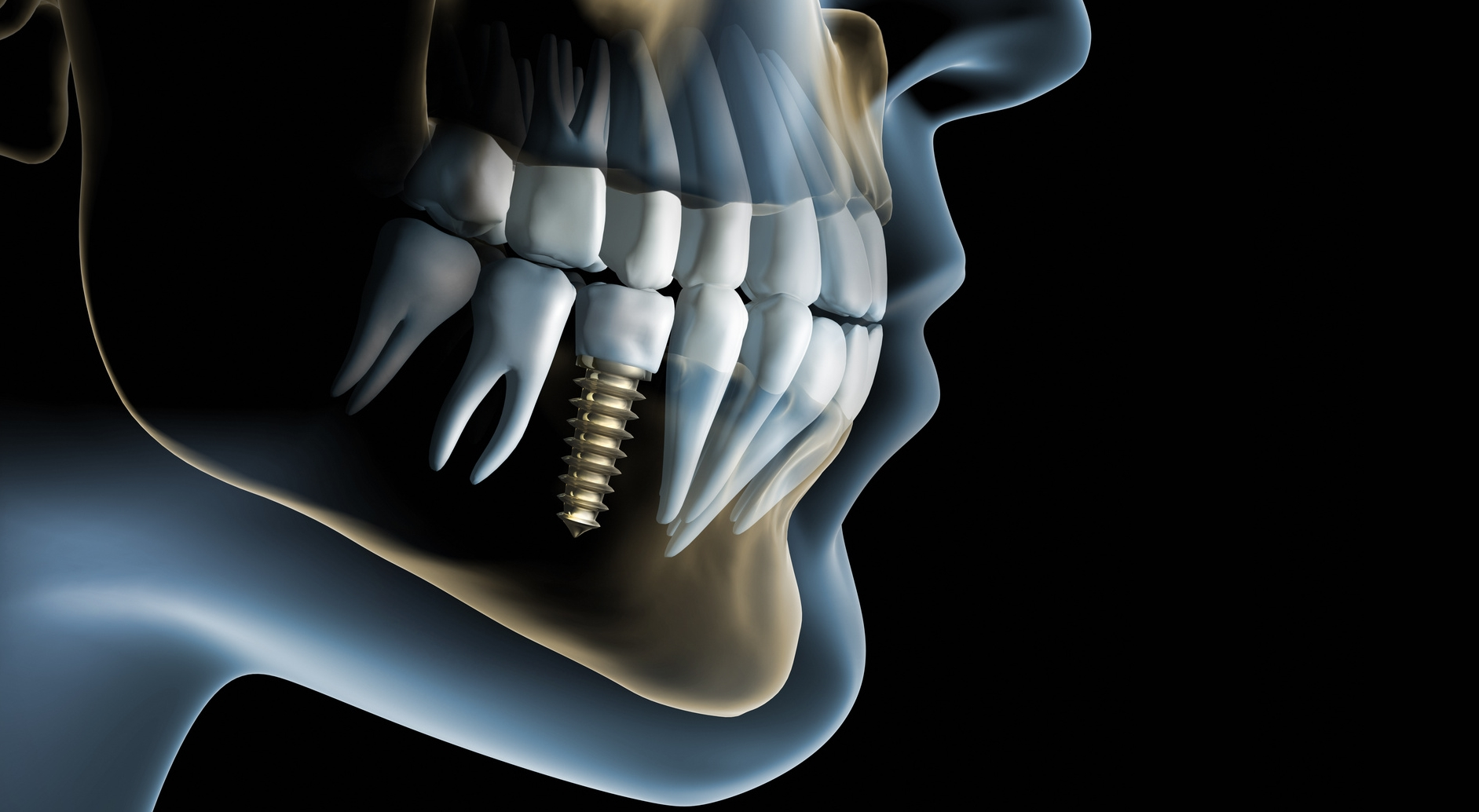 Dental Implants and Prosthetics Market 2019: Market Size Analysis by Key Venders, Price, Gross Margin, Segmentation, Trends, Share 2025