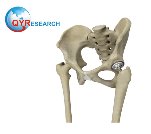 Bone Replacement Market Overview 2019 - 2025: QY Research