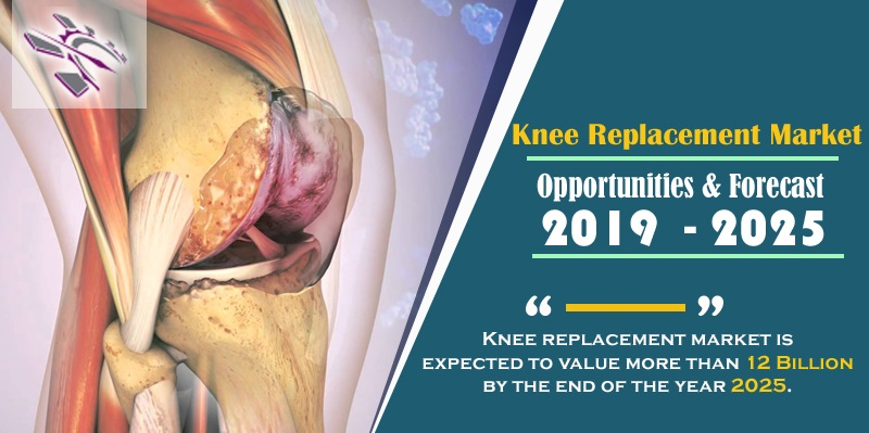 Knee replacement market is expected to value more than 12 Billion by the end of the year 2025