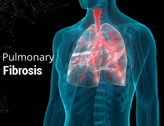 Idiopathic Pulmonary Fibrosis Treatment Market – Size, Therapeutics, Growth Opportunity, Regional Trends, Research Updates, Industry Share and Technology Development By Key Players, Forecast to 2025