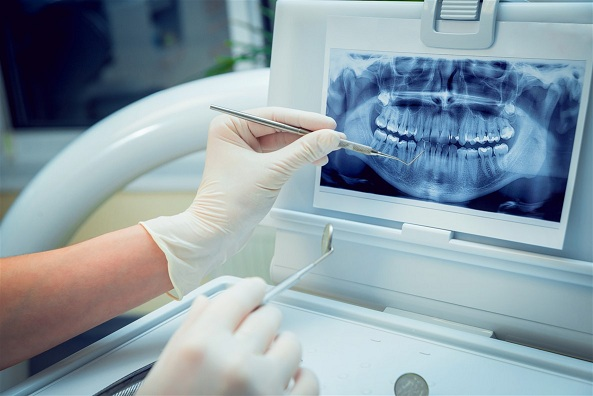 Dental Radiology and Dental Imaging Devices Market | Size, Share, Trends, Growth, Analysis, Segmentation and Top Key Companies 2019-2023