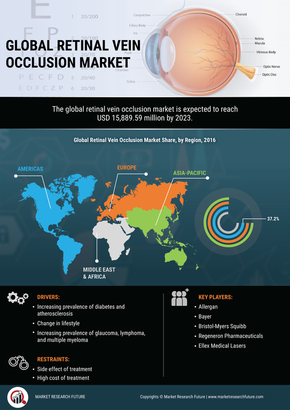 Global Retinal Vein Occlusion Market to Ascend at 11.2% CAGR by 2023