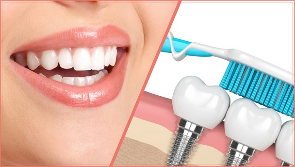 Cosmetic Implant Market is Expected to Grow at Healthy rate of 7.1% During the Forecast Period 2019-2023 to reach valuation of USD 11.2 billion | Size, Share, Trends, Future Scope and Analysis