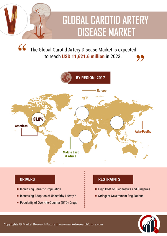 Carotid Artery Disease Market: 2019 Industry Analysis By Global Size, Share, Growth, Statistics, Trends, Key Players Analysis with Strategy Profiling With Regional Forecast To 2023