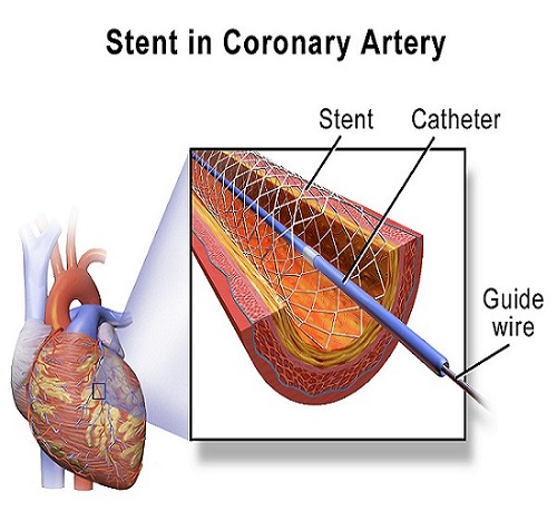 Percutaneous Coronary Intervention Market Size Is Predicted To Touch USD 15.20 Billion At A 7.1% CAGR By 2023   Medtronic, Cordis, Biotronik, Terumo and Cook