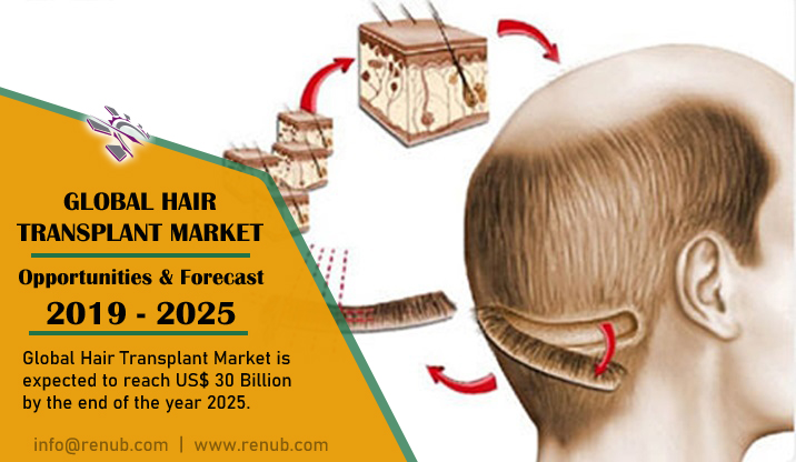 Global Hair Transplant Market is expected to reach US$ 30 Billion by the end of the year 2025