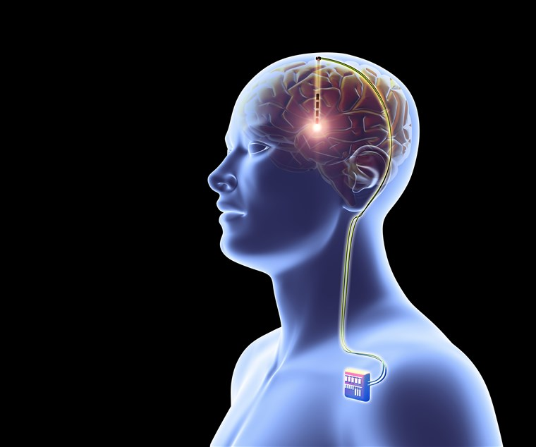 Brain Implants Market Set to take Giant Positive Leap