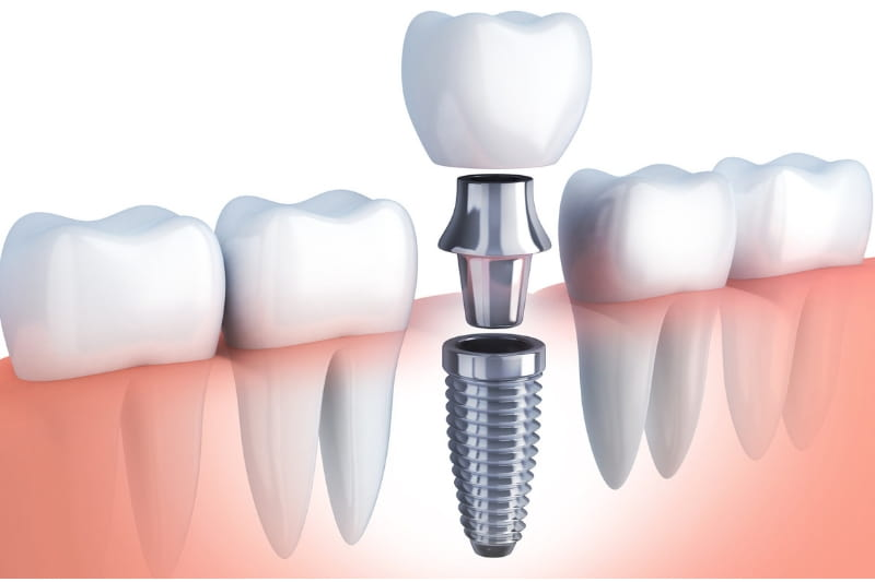 Dental Implants Market Report 2019, Industry Share, Size, Trends, Forecast and Analysis of Key players 2024