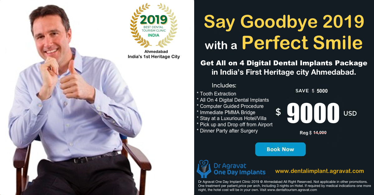 Say Goodbye 2019 with a Perfect Smile, Get All on 4 Digital Dental Implants Package in India's First Heritage City Ahmedabad