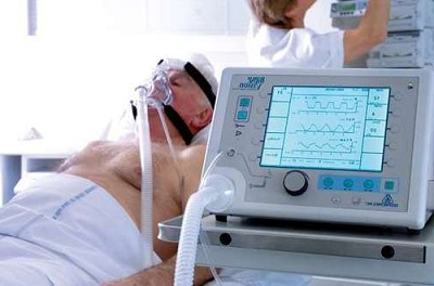 Respiratory Therapeutic Devices Market Size, Top Key Players Share Analysis, Technology Advancements, Demand Penetration and Future Industry Trends Till 2023