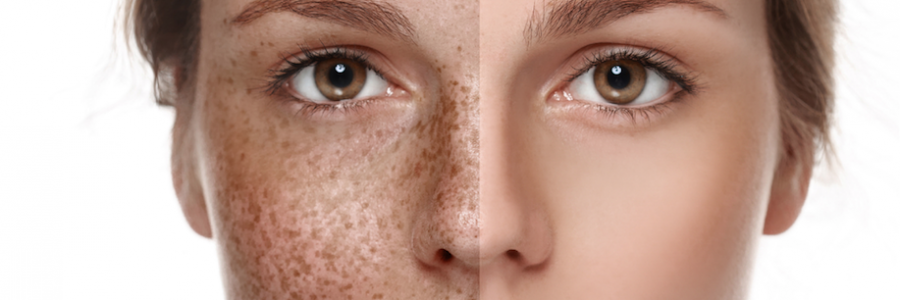 Hyperpigmentation Disorder Treatment Market Expected CAGR of + 7.1% By 2023: Top Company Profiles, Latest Technology, Global Size, Industry Trends and Outlook