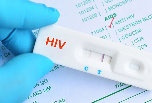 AIDS Rapid Test Kit Market Future Demand Analysis, Features Industry sizes, Key Objective Forcast upto 2020-2025