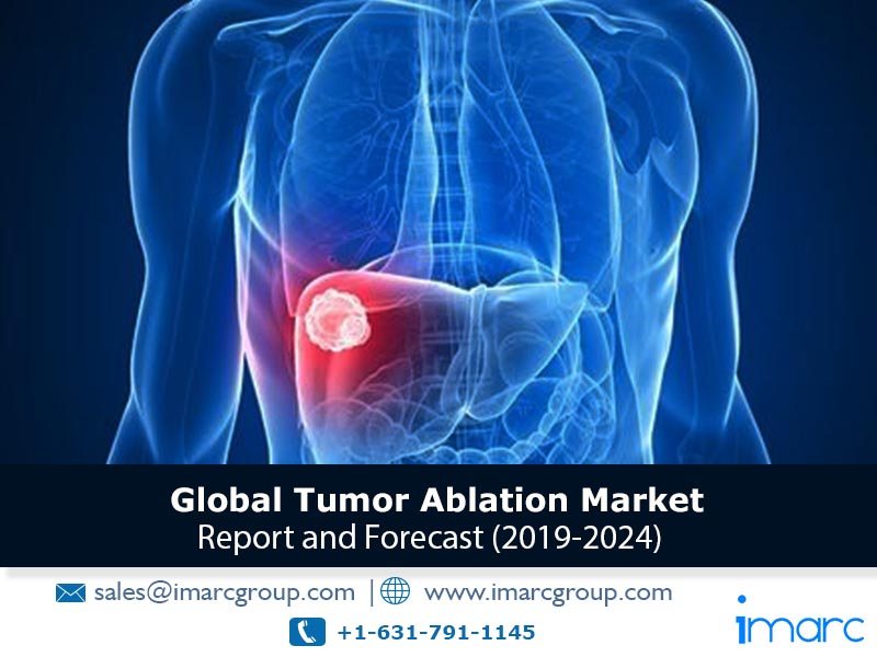 Tumor Ablation Market Growth Analysis, Top Companies, Industry Overview, Demand, Regional Analysis and Forecast 2024