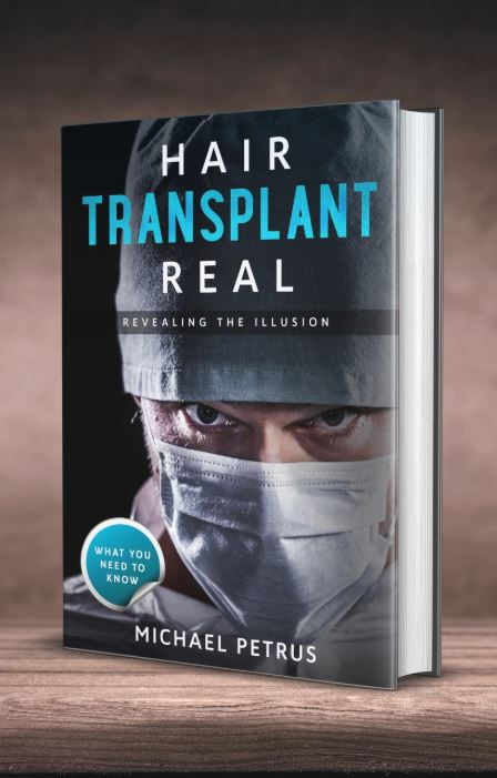"Wellness Leader and Author Michael Petrus Releases Book ""Hair Transplant Real: Revealing the Illusion"" Breaking a 35 Year Silence to Uncover the Secrets of the Hair Transplant Industry"