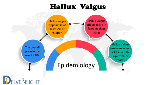 Hallux Valgus Epidemiology Forecast to 2030