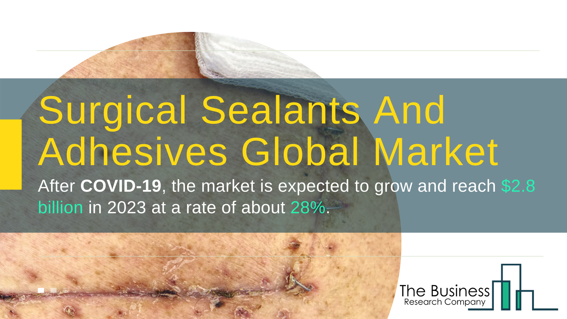 Global Surgical Sealants And Adhesives Market Value Expected To Reach $2.8 Billion By 2023