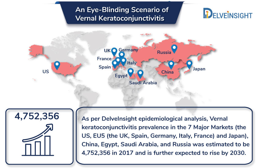 Vernal Keratoconjunctivitis Epidemiology Analysis, Historical Trends and Forecast 2017-30