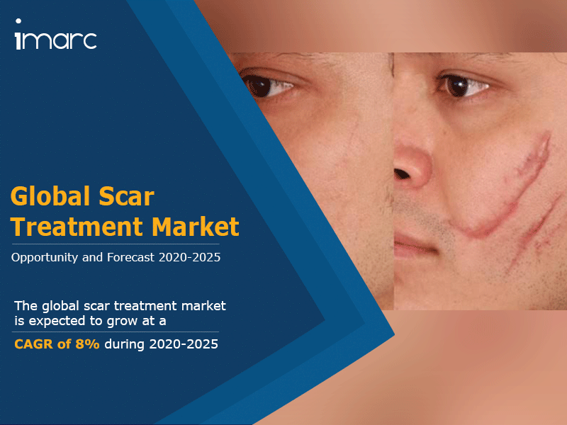 Scar Treatment Market Report 2020: Global Industry Trends, Growth, Key Players, Size, Share and Forecast By 2025