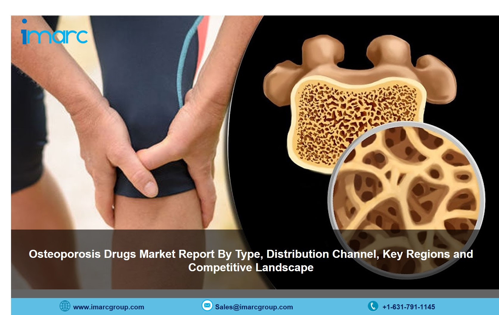 Osteoporosis Drugs Market 2021-26: Size. Share, Price and Industry Trends