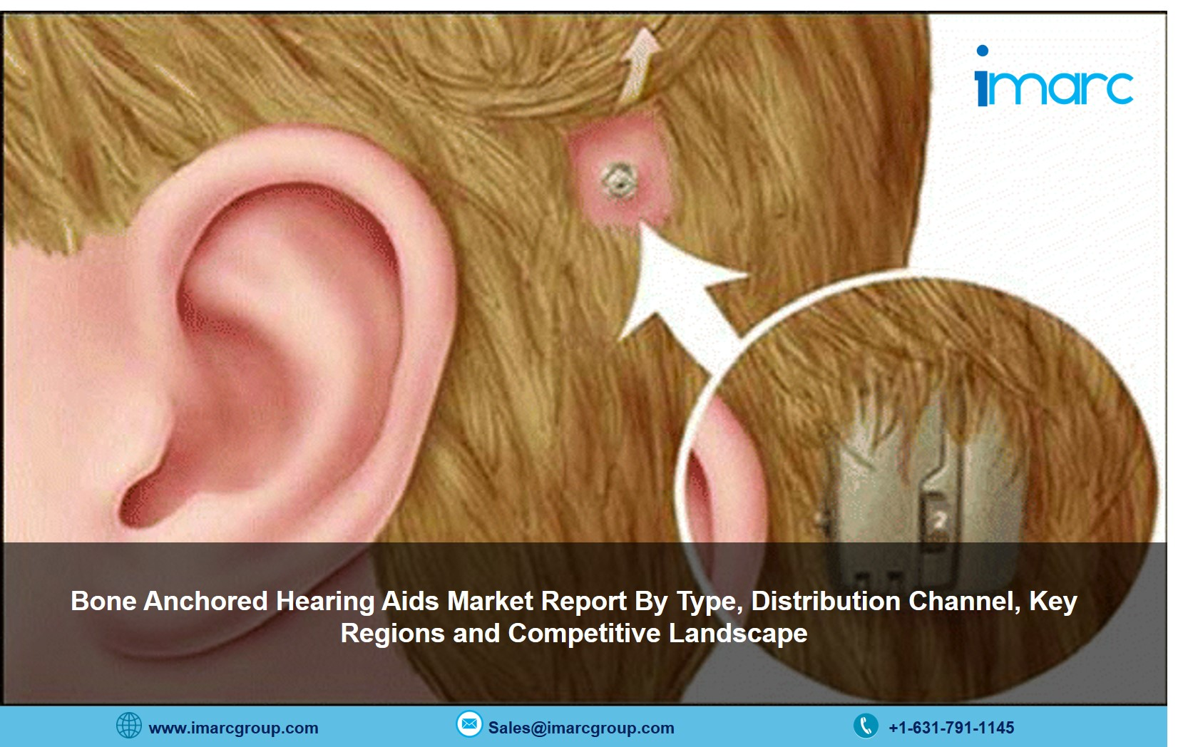 Bone Anchored Hearing Aids Market 2021-26: Size. Share, Price and Industry Trends