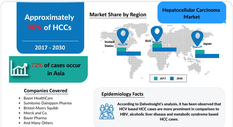 Hepatocellular Carcinoma Market covering the United States, EU5, and Japan from 2018 to 2030